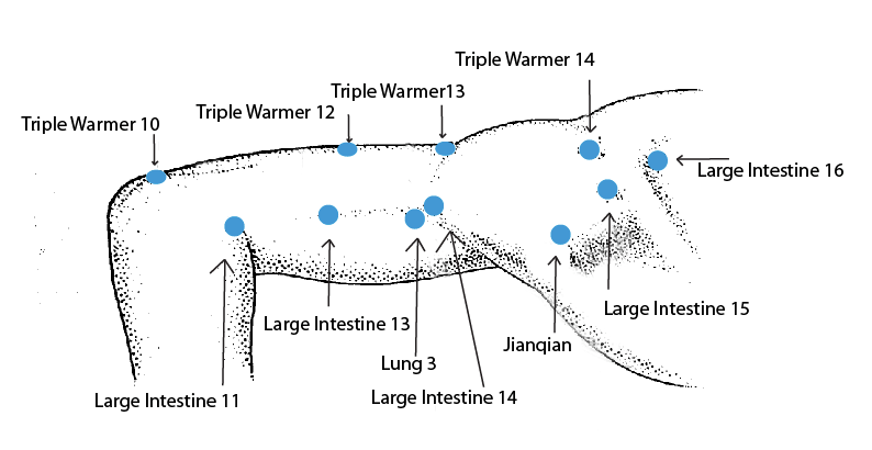 Acpuncture for frozen shoulder
