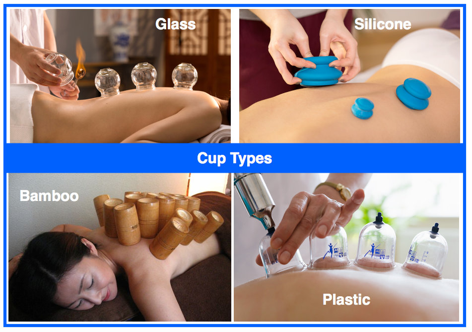 cupping-therapy-cup-types